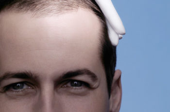 cihabeyli saç ekimi