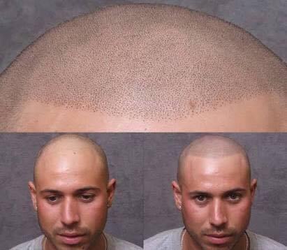 saç simülasyonu konya