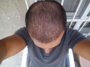 saç-ekimi