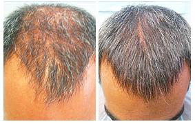 saç-ekimi-merkezleri-bursa
