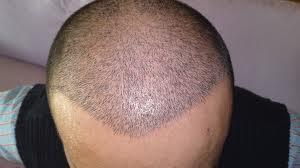 Beyşehir saç ekimi
