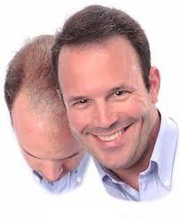 ereğli saç ekimi