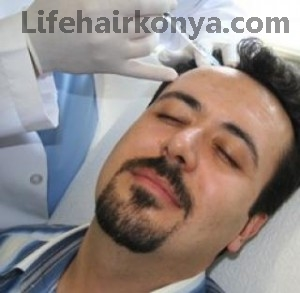 saç ekimi acı ve ağrı yapar mı